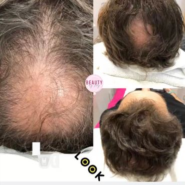 Micro Needling for Hair